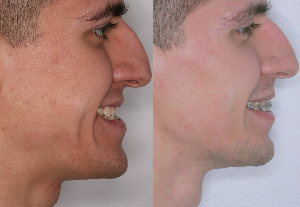 Corrective Jaw Surgery | Orthognathic Surgery | Misaligned Jaws